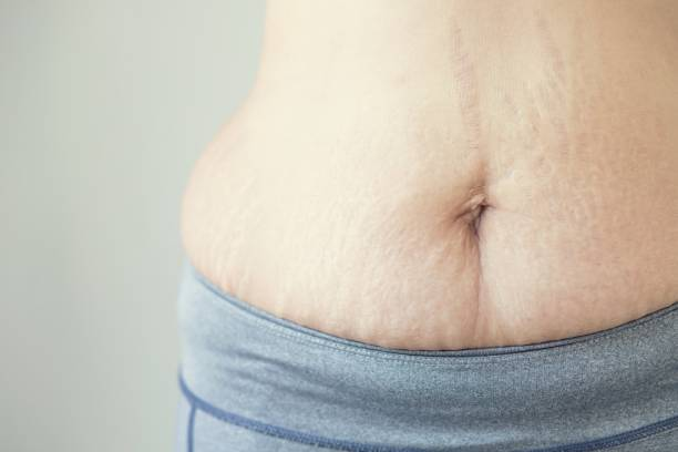 Pregnant women resulting in tummy skin, fat patterns and scars